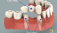 Có nên trồng răng sứ không?