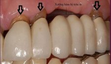 Những hậu quả có thể gặp khi làm cầu răng sứ.