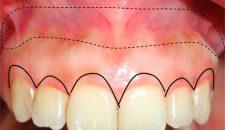 Các phương pháp phẫu thuật cười hở lợi.