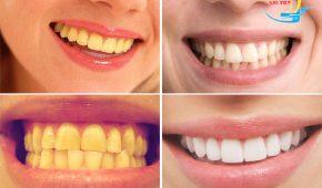 Phương pháp tẩy trắng răng khi răng bị vàng nhanh chóng