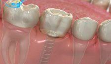 Bật mí trồng răng cấm bằng kỹ thuật cầu răng nên hay không?