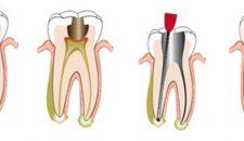 Răng đã lấy tủy liệu có thể tồn tại được lâu