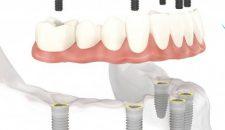 Implant nha khoa là gì? Trung tâm implant công nghệ cao Lạc Việt