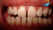 Tìm hiểu Khi răng bị thưa có thể trám hay không