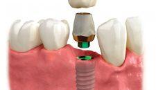 So sánh phục hình trên implant dạng bắt vít và dạng gắn xi măng.