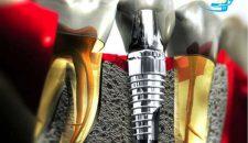 Cùng Lạc Việt tìm hiểu thời gian làm răng implant mất bao lâu
