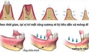 Kinh nghiệm trồng răng implant.
