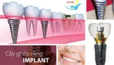 Trồng răng bằng phương pháp implant là gì?