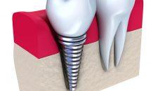 Ưu nhược điểm của cấy ghép răng implant.