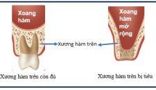 Kỹ thuật nâng xoang trong cấy ghép implant là gì?